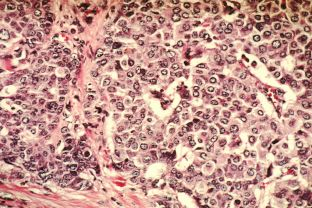 1024px-breast_cancer_cells_1