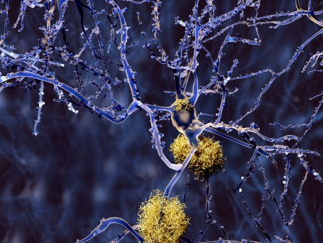 alzheimer-disease-neuron-with-amyloid-plaques